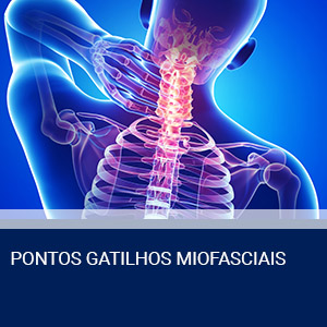 PONTOS GATILHOS MIOFASCIAIS